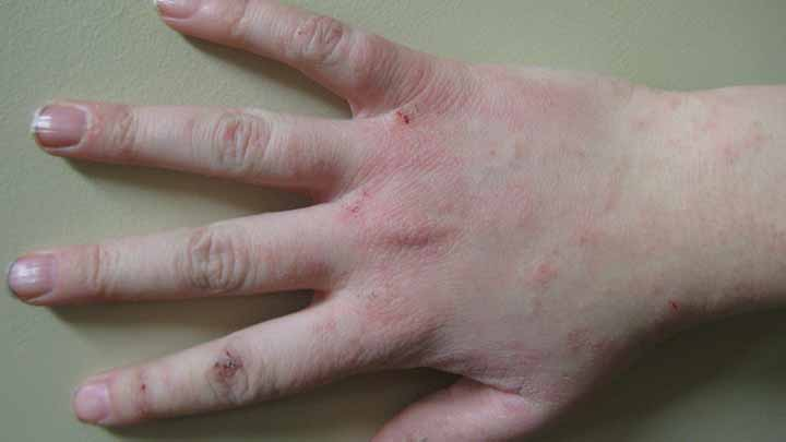 Dermatitis Is A Skin Condition That Many People Suffer From All Around The World It Generally Described As Becomes Itchy And Inflamed