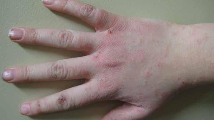 Carpet Beetles Dermatitis Symptoms And